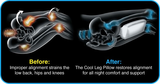 Leg Pillow Before-after-cool-leg-pillow