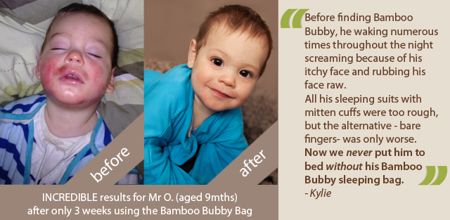 baby-eczema-testimonial-mro.jpg