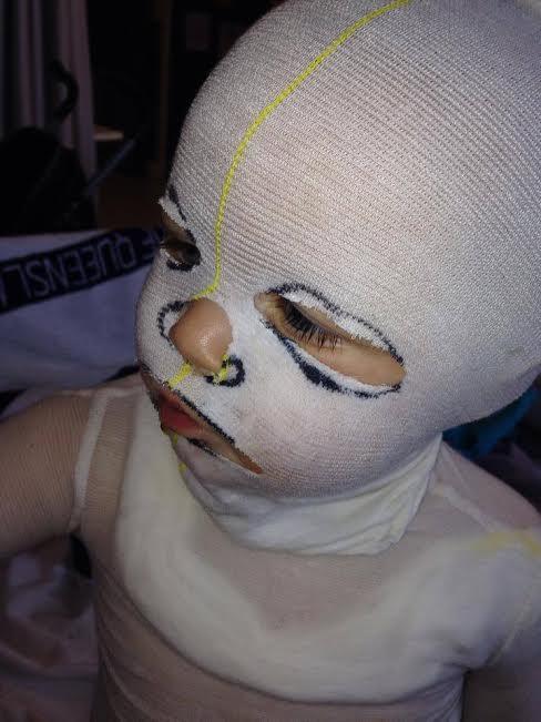 Wet dressings for eczema - Royal Children's Hospital