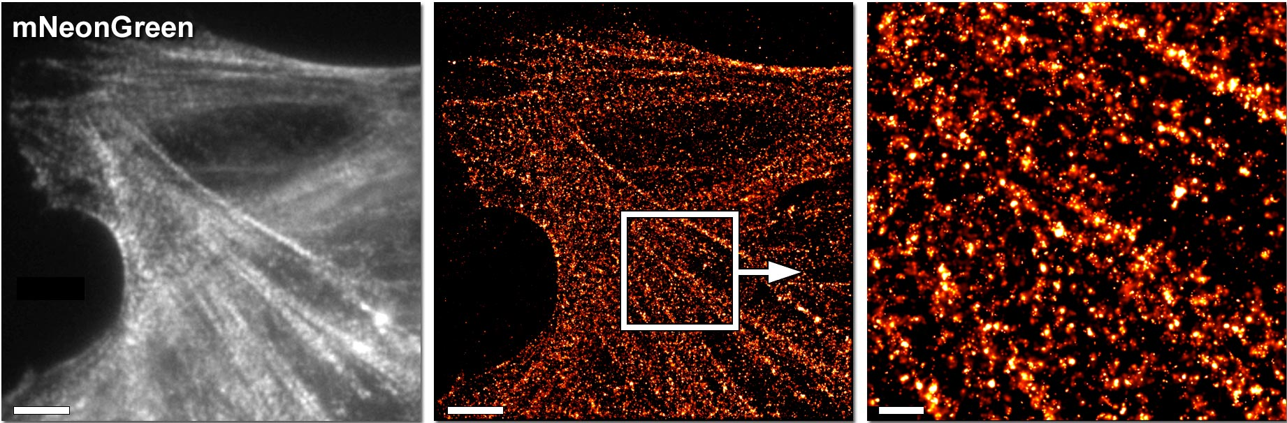 mNeonGreen Superresolution of Myosin IIA
