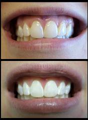 teeth-after-whitening.jpg