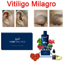 Vitiligo Miracle 7 Day Pack