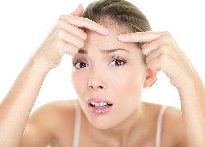 acne-skincare.jpg