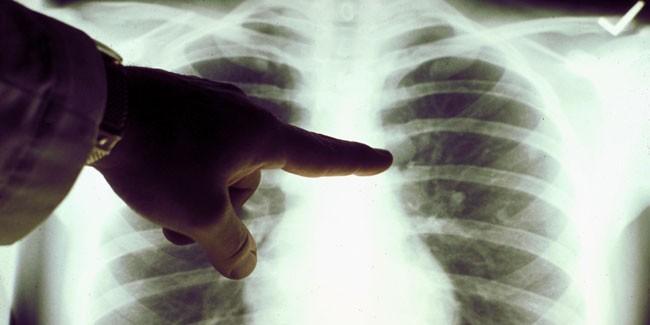 lung-cancer-e1386620162358.jpg