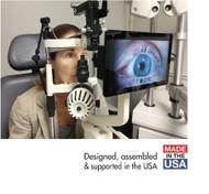 Oculess Anterior Segment Slit Lamp Imaging System