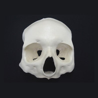 Frontal Skull - all on 4 – Zygoma - Each
