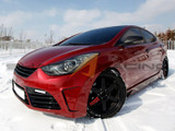 2011-2016 Elantra Type M Body Kit