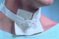 Disposable Trachea Tube Holder DAL240AEA