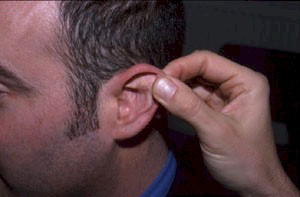 All logical Ear problem in adult
