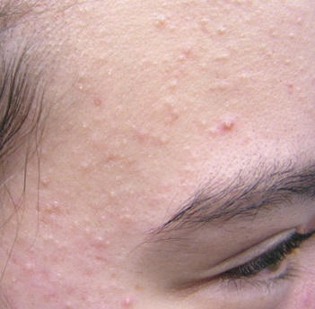 Acne Cysts Back