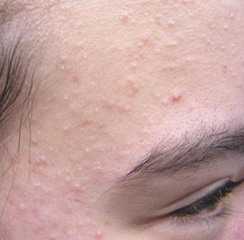 acne part 2: types of acne, Cephalic Vein