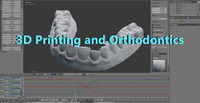 3D Printing and Orthodonotics