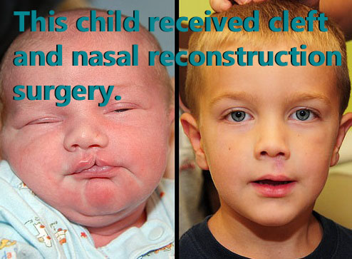 Before and after cleft lip and nasal reconstruction surgery