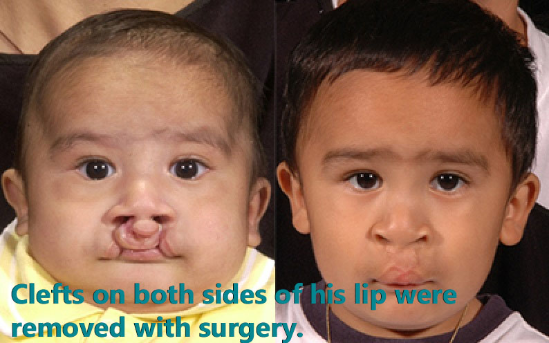 Before and after cleft lip and cleft palate surgery