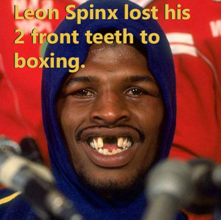 A former professional boxer that lost his 2 front teeth to the sport.