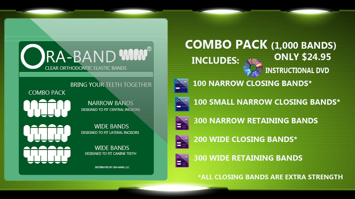 Combo Pack - 1,000 BANDS *Includes 200 Extra Strength Narrow Closing Bands, 300 Narrow Retaining Bands, 200 Extra Strength Wide Bands and 300 Wide Retaining Bands