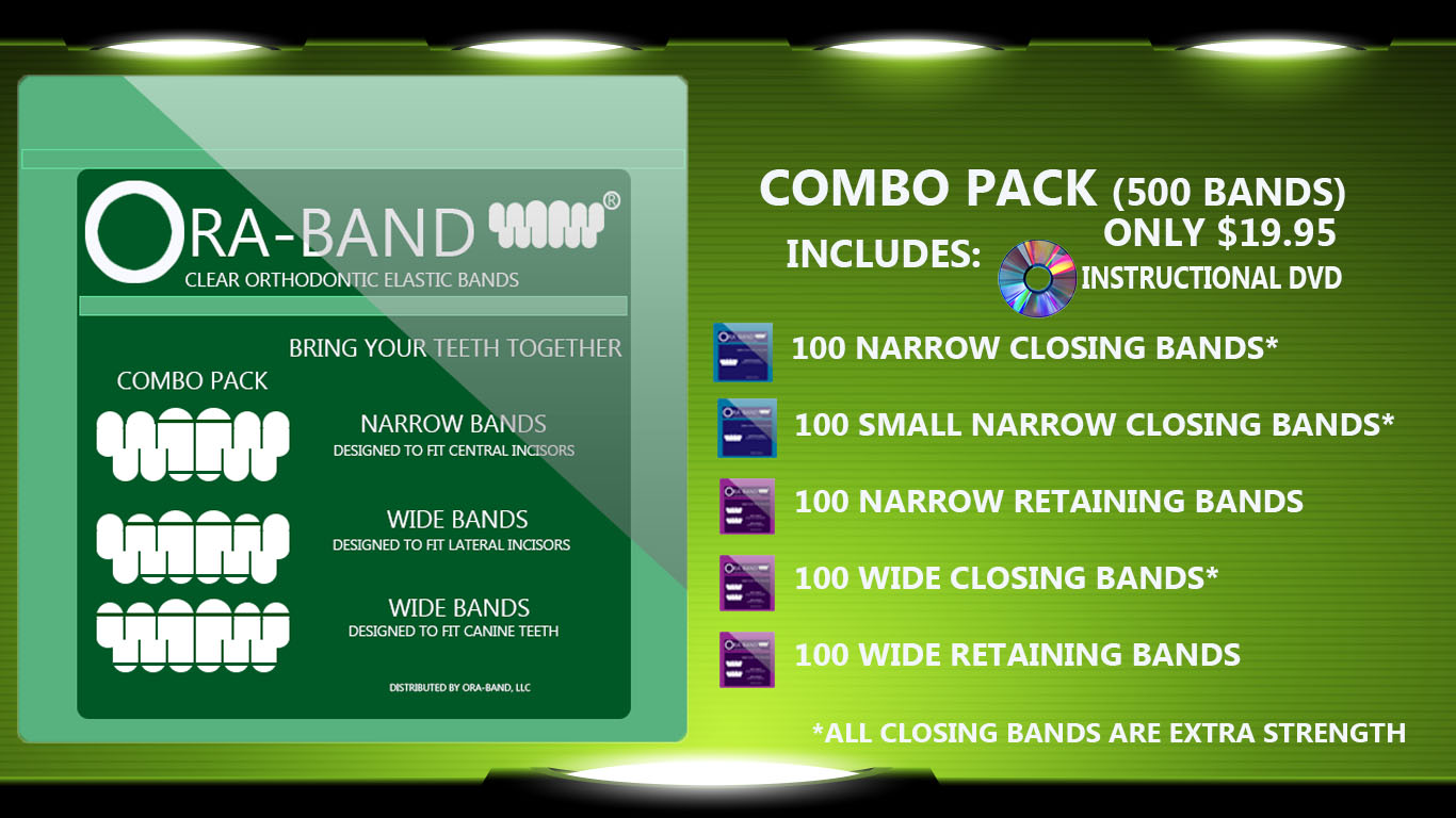 COMBO PACK - 500 BANDS (INCLUDES 100 EXTRA STRENGTH NARROW CLOSING BANDS, 100 EXTRA STRENGTH SMALL NARROW CLOSING BANDS, 100 NARROW RETAINING BANDS, 100 EXTRA STRENGTH WIDE CLOSING BANDS AND 100 WIDE RETAINING BANDS)