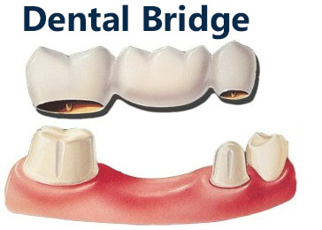 Dental Bridge Picture