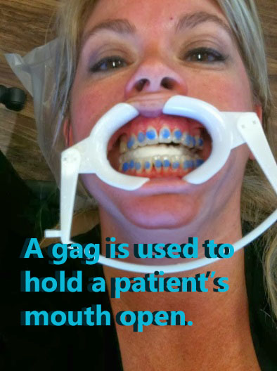 My time with braces: Part 3 - ORA-BAND