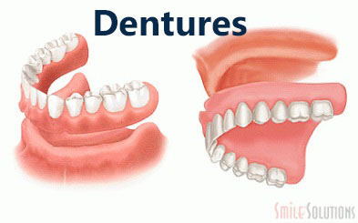 A picture of dentures