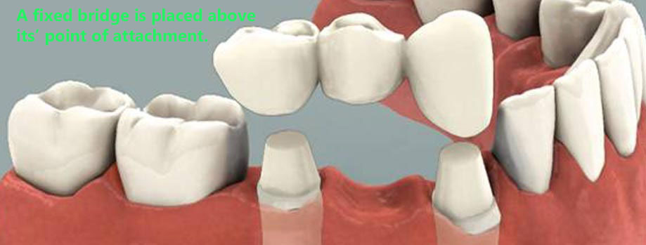 Closing a gap in your teeth that is the result of a ...