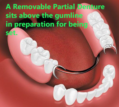 A removable partial denture before placement