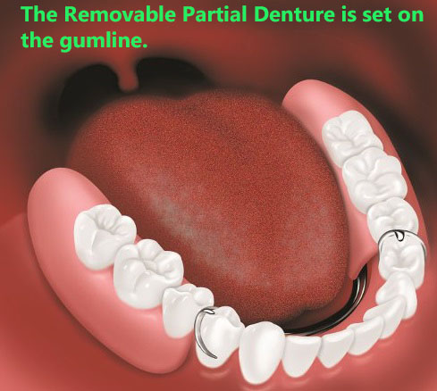 A removable partial denture after placement