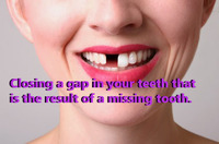 Closing a gap in your teeth that is the result of a missing tooth