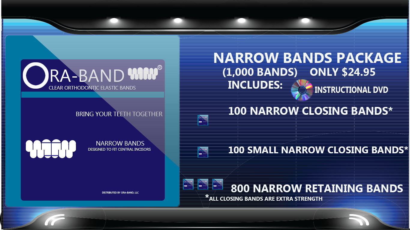 1,000 Narrow Bands *Includes 200 Extra Strength Narrow Closing Bands and 800 Narrow Retaining Bands