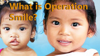 WHAT IS OPERATION SMILE?