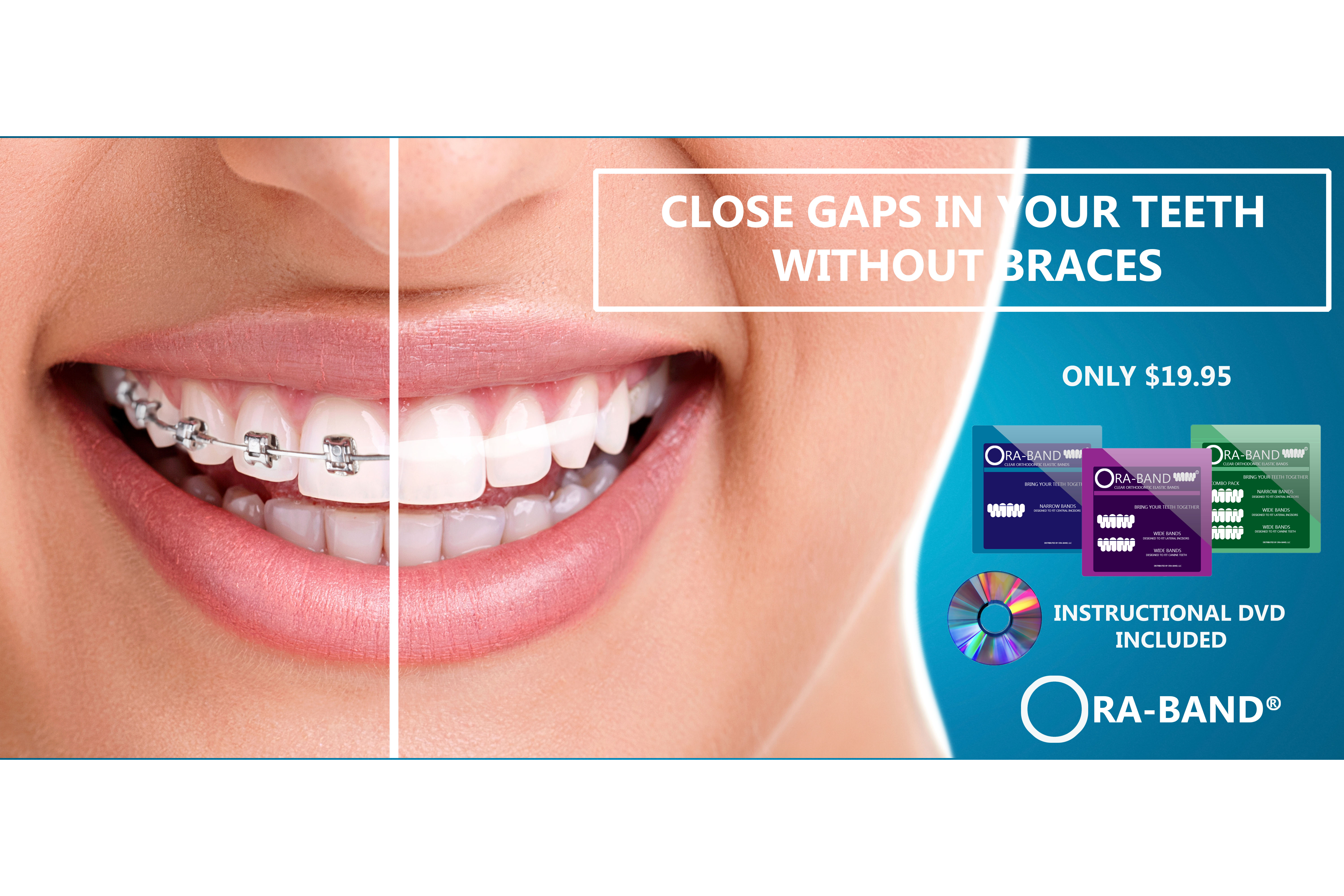 CLOSE GAPS IN YOUR TEETH WITHOUT BRACES