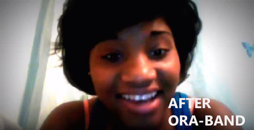 ORA-BANDS AFTER BEING USED BY THIS YOUNG LADY