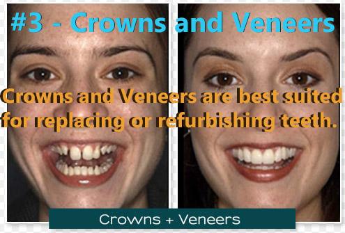 Crowns and Veneers were ranked #3.