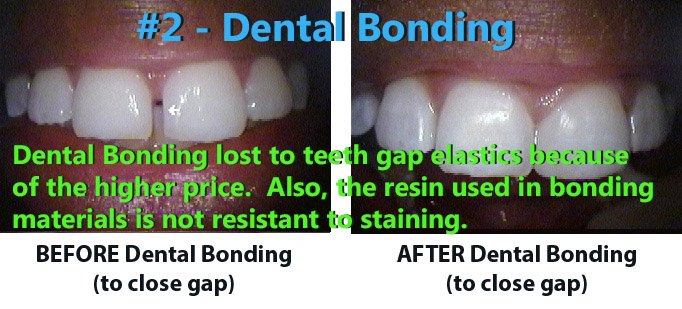 Dental Bonding was ranked #2.