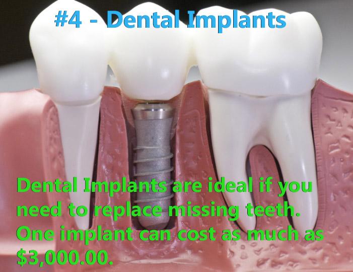 Dentures were ranked #4.