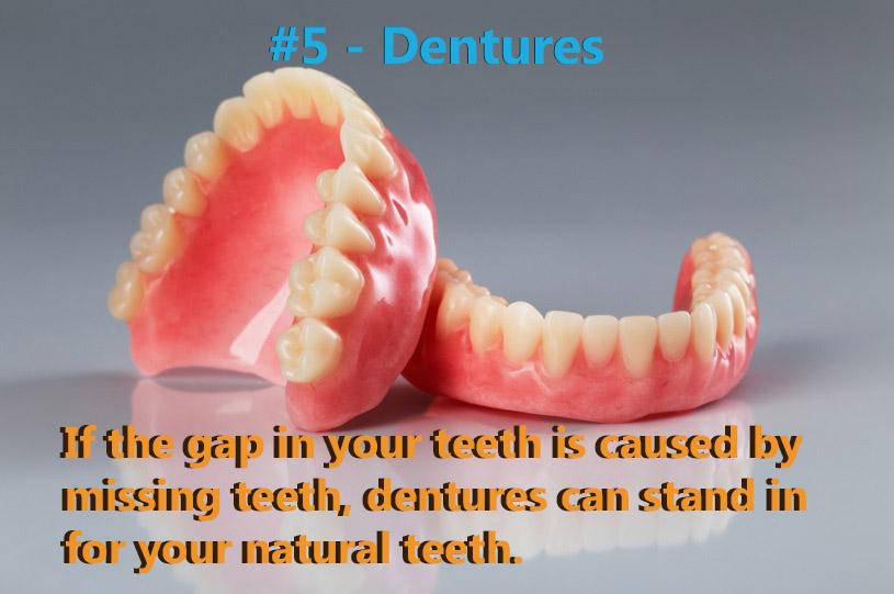 Dentures were ranked #5.