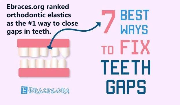 Ebraces.org ranked orthodontic elastics as the #1 to close a gap in teeth.