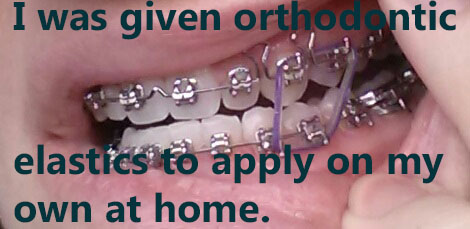Orthodontic Elastics on teeth