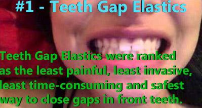 Teeth Gap Elastics were ranked number one.