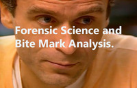 FORENSIC SCIENCE AND BITE MARK ANLAYSIS THUMBNAIL
