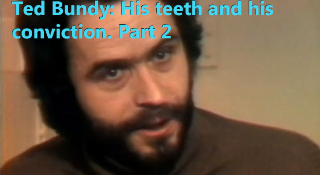 TED BUNDY: HIS TEETH AND HIS CONVICTION.  PART 2