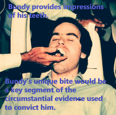 Bundy provides his teeth impressions in advance of his trial for the Chi Omega Murders