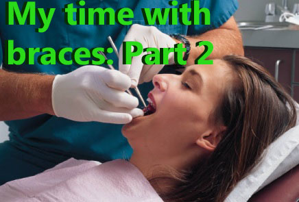 My time with braces: Part 2