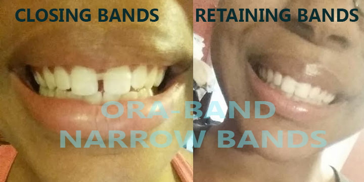 ORA-BAND® NARROW CLOSING BANDS AND NARROW RETAINING BANDS