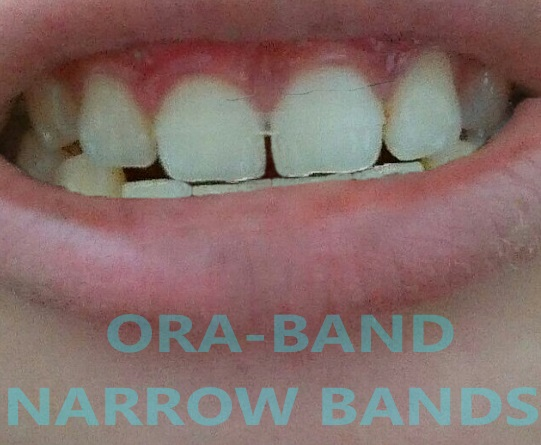 ORA-BAND® NARROW BANDS FOR SMALL AND MID-SIZED GAPS