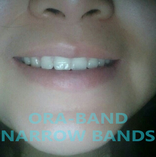 ORA-BAND® NARROW RETAINING BANDS FOR THE 2 FRONT TEETH