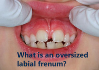 This is a picture of an oversized labial frenum