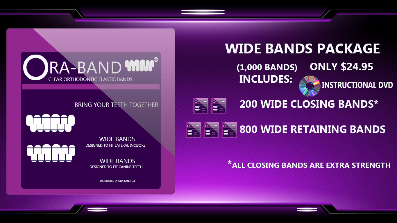 1,000 Wide Bands (Includes 200 Extra Strength Wide Closing Bands and 800 Wide Retaining Bands)