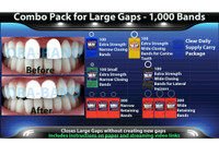 Combo Pack for Large Gaps - 1,000 BANDS *100 Extra Strength Narrow Closing Bands, 100 Extra Strength Small Narrow Closing Bands, 300 Narrow Retaining Bands, 200 Extra Strength Wide Closing Bands, 300 Wide Retaining Bands