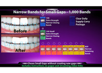 1,000 Narrow Bands *100 Extra Strength Narrow Closing Bands, 100 Extra Strength Small Narrow Closing Bands and 800 Narrow Retaining Bands